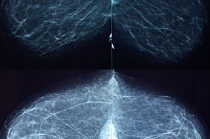 Orientações sobre a Mamografia de Rotina